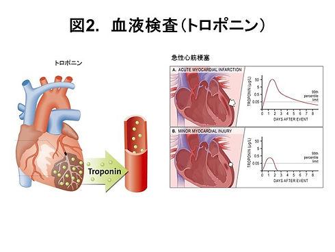 血液検査トロポニン(図2).jpg