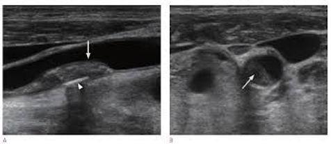 頸動脈エコ-検査2.jpg