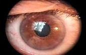Augendiagnose Heilpraktiker Stephan Remy