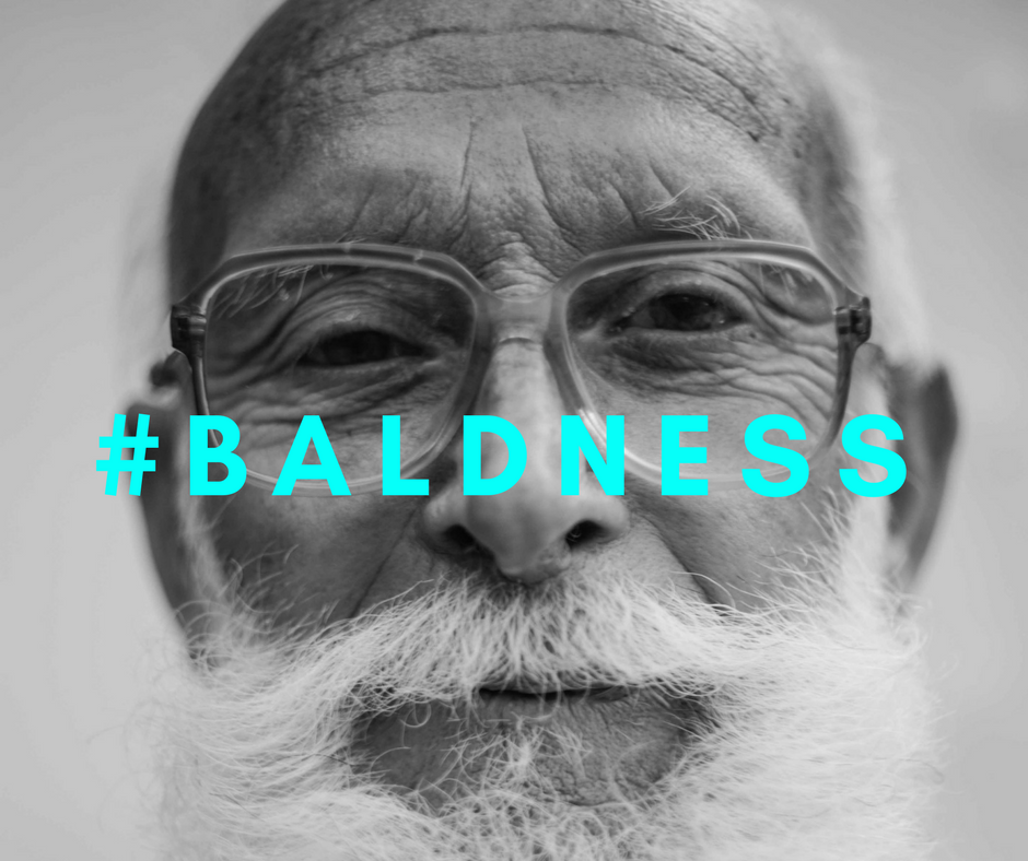 Better to be confident about your baldness, and not try to hide it.