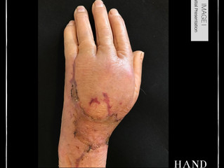 Necrotic Wound & Fractured Finger in an Elderly Lady