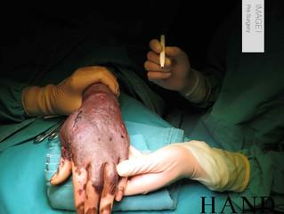 Joe's Journey: Operation I Superficial Iliac Artery Groin Flap and Web Creep Release