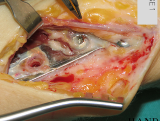 Removal of Distal Radius Plate