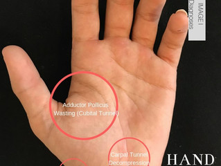 Cubital & Carpal Tunnel in a 14 year old Rower