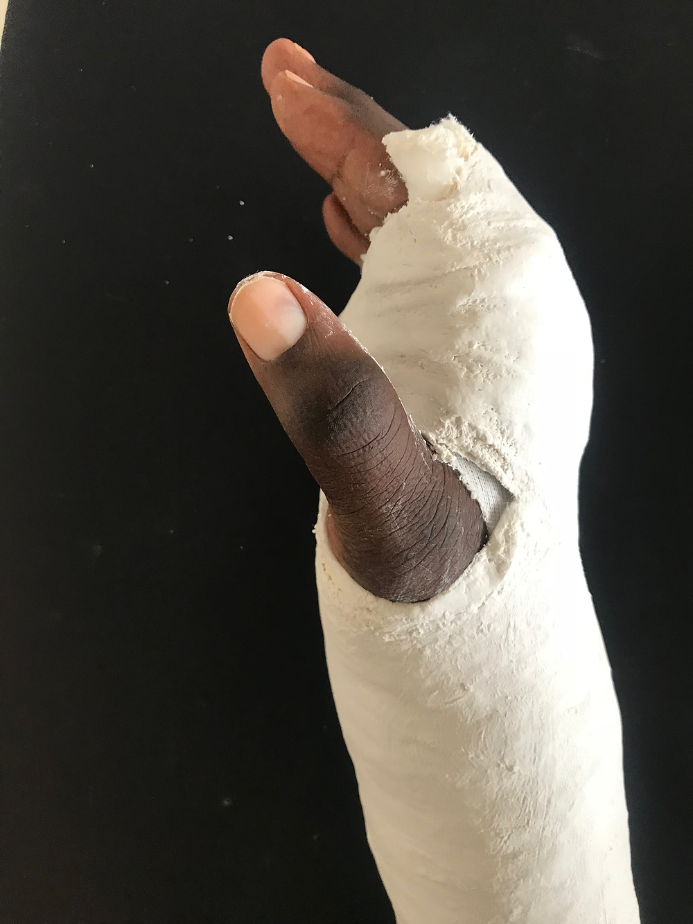 An Intrinsic minus cast was applied to Kwame's hand to re-establish a normal pattern of motion and improve joint mobility through active re-direction