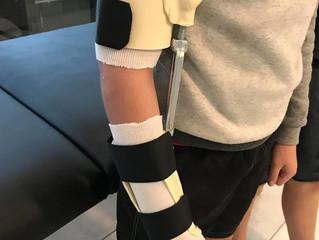 Elbow Fracture - Turnbuckle Splint