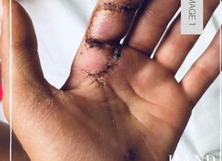 Flexor Tendon Repairs - Old Protocol, Poor Results. Why small changes can make a big difference.