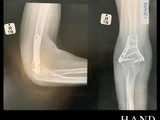 Fractured Elbow & Wrist - Secondary problems develop