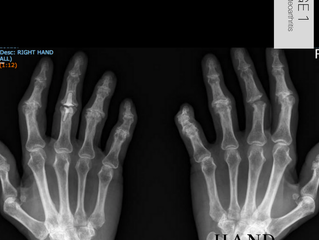 Finger Joint Replacements