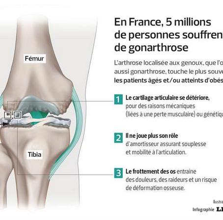Genoux douloureux: limiter les méfaits du surpoids