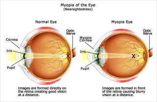 Keeping an eye on your child's vision condition