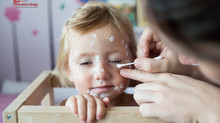 Chickenpox: Is Vaccination Necessary?