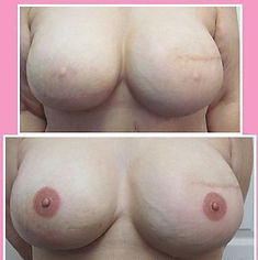 Picture Areola Tattoo