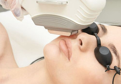 Lip Laser Hair Removal