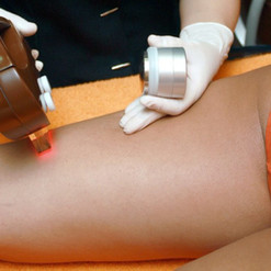 laser-hair-removal-1024x682.jpg
