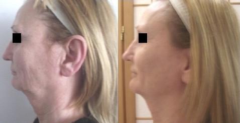 Non-invasive facelift results.