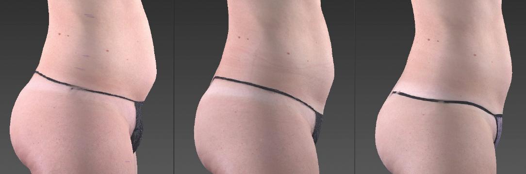 Belly & Butt