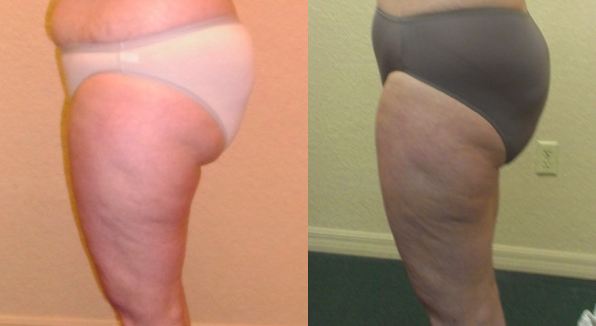 Patient was treated with UltraSlim and lost 30 pounds with 12 treatments.