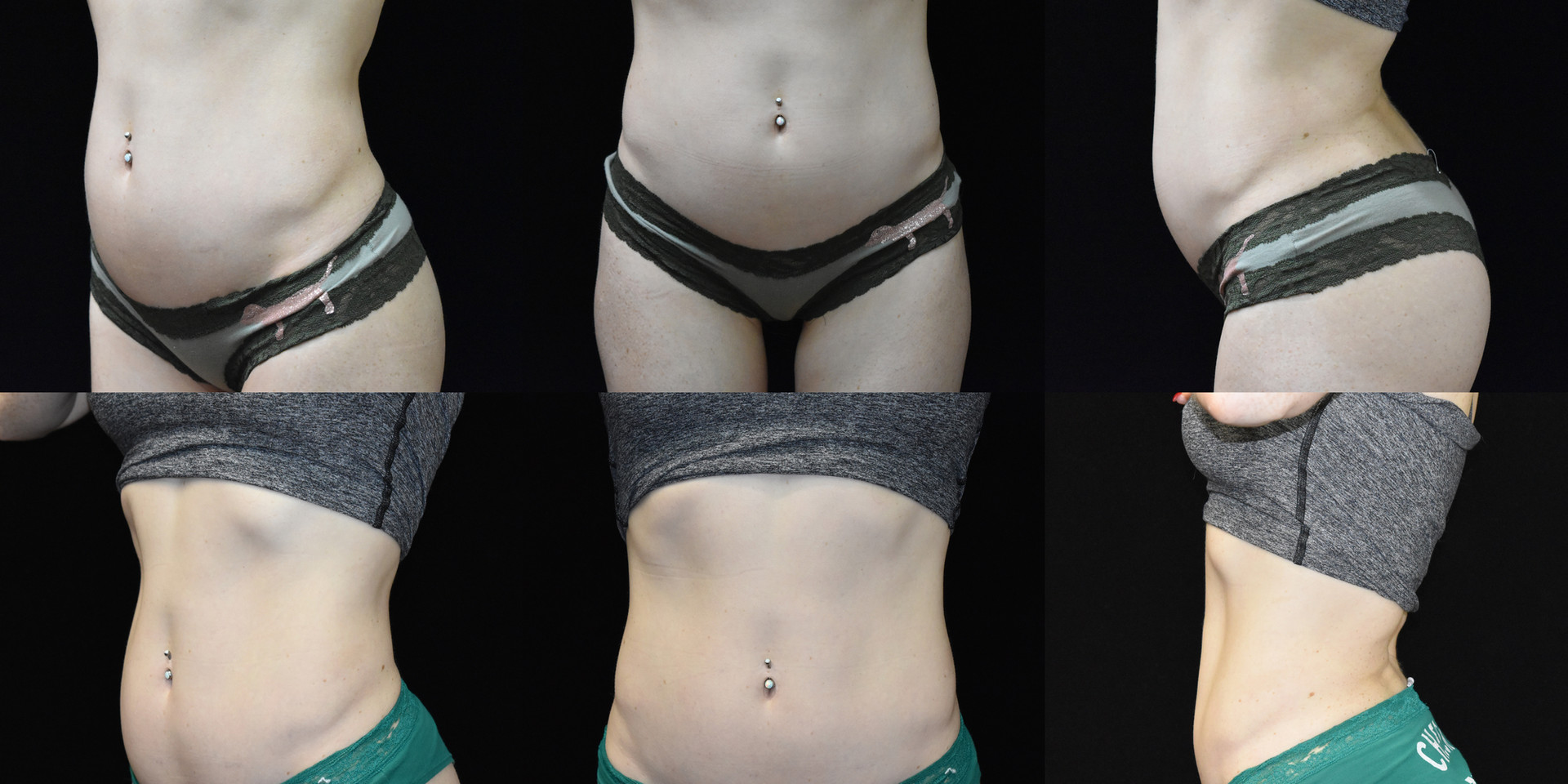 A patient three days after first UltraSlim treatment.