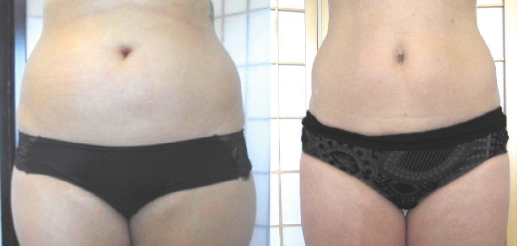 Midsection & Love Handles Side By Side