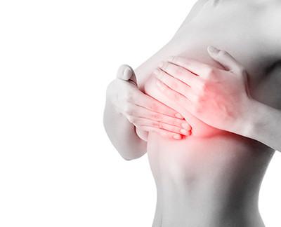 Vida sexual durante y después del padecimiento de cáncer de mama