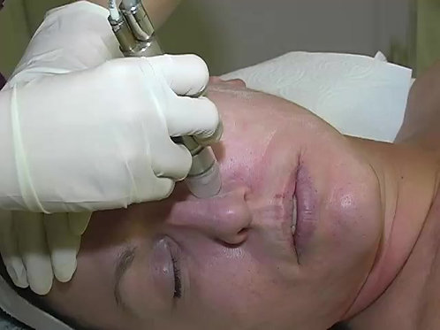 Online medical aesthetics exfoliation techniques including chemical peels, microdermabrasion and dermaplaning
