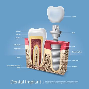 human-teeth-dental-implant-vector-illust