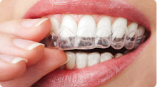 Check out our hygienist blogs tomorrow, she will be having quick straight braces applied