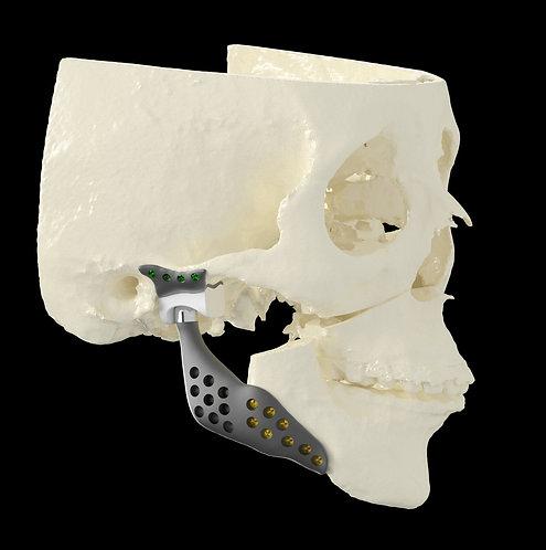 Próteses customizadas de ATM - Planejamento 3D e Workshop