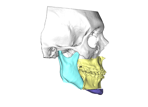 Planejamento cirúrgico virtual para cirurgia ortognática