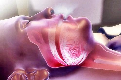Avanço maxilo-mandibular como tratamento cirúrgico da SAOS em adultos