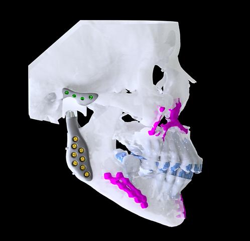 Planejamento virtual avançado para cirurgia ortognática