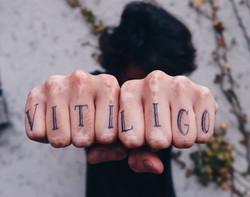 vitiligo tattoo France