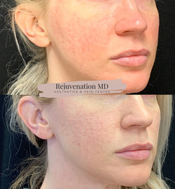 IPL for Acne