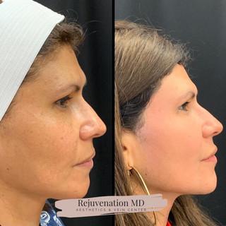 Before + After Enlighten Peel
