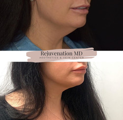 Before + After Kybella