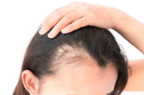 hairloss-service-800x533.jpg