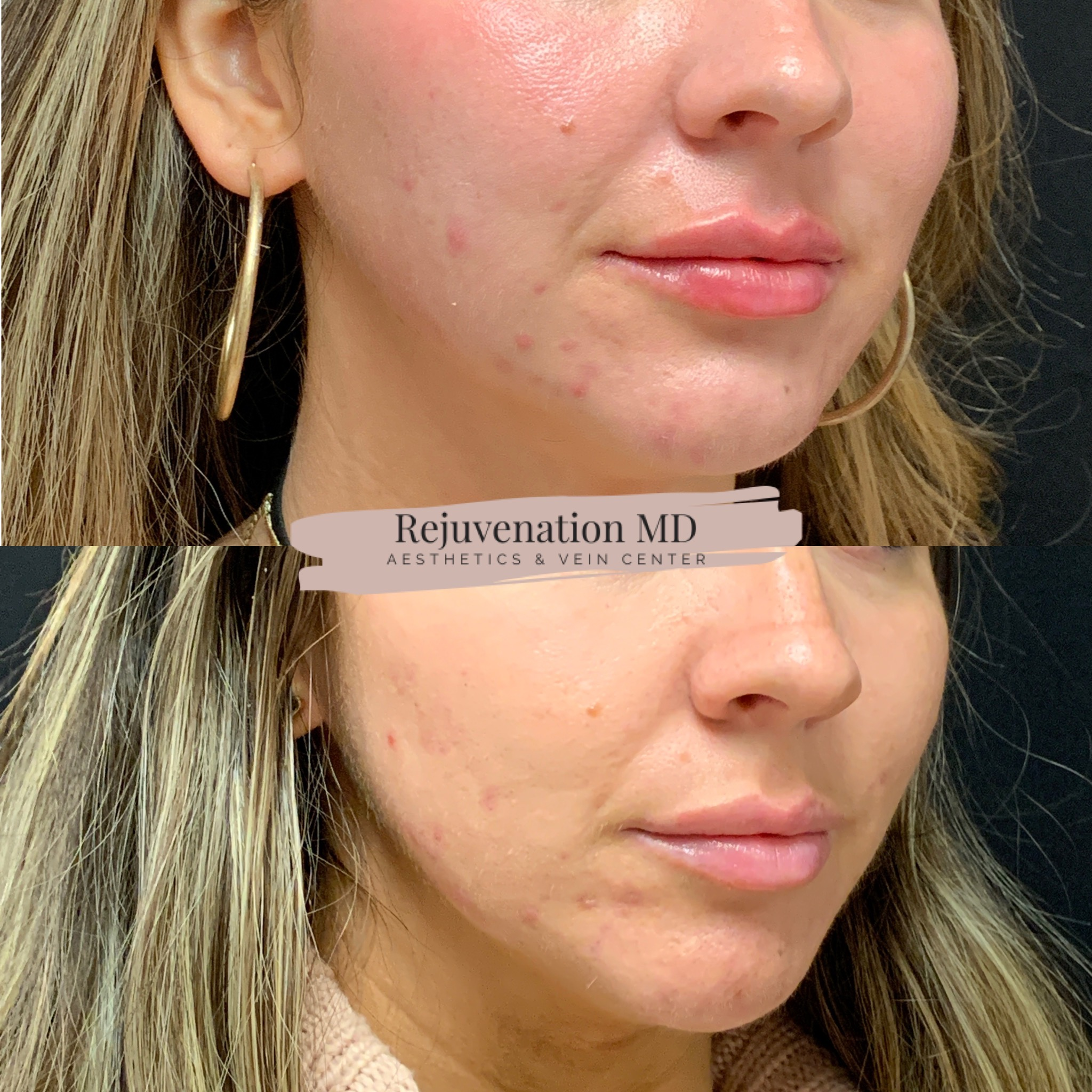 IPL for Enlarged Pores and Acne