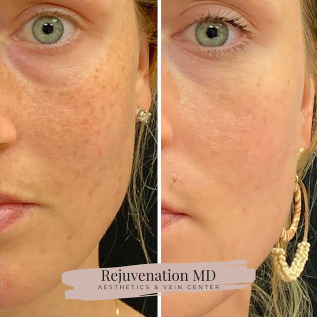 Perfect Dermal Peel Before + After
