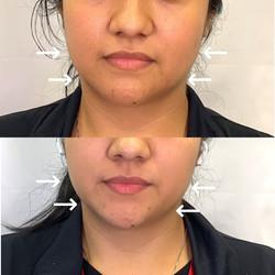Facial Slimming Dysport