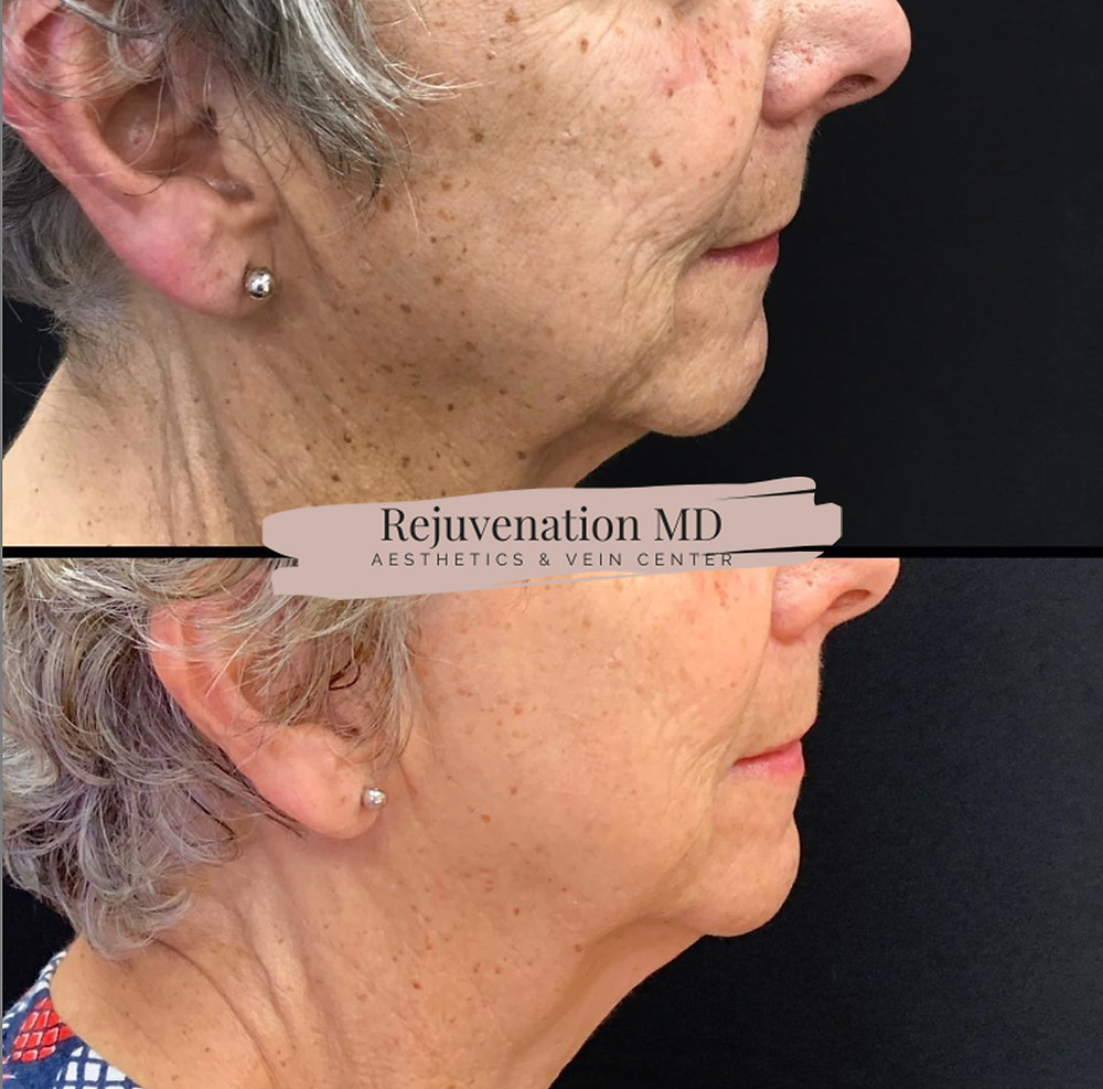Before and After of our actual patient who received IPL PhotoFacial