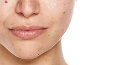 Skin-Discoloration-Image-SkinCeuticals.j