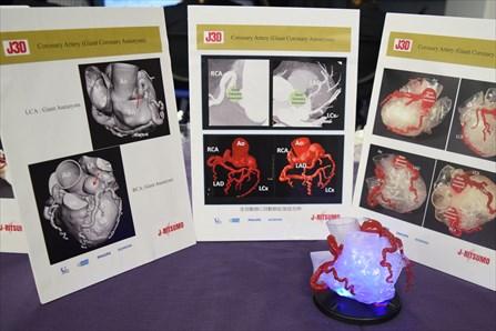 『先天性冠動脈疾患におけるCTAの有用性』