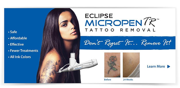 Tattoo Removal, Micro-Needling