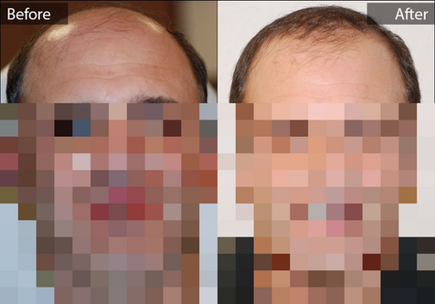 before-after-male-hair-transplant-20.png