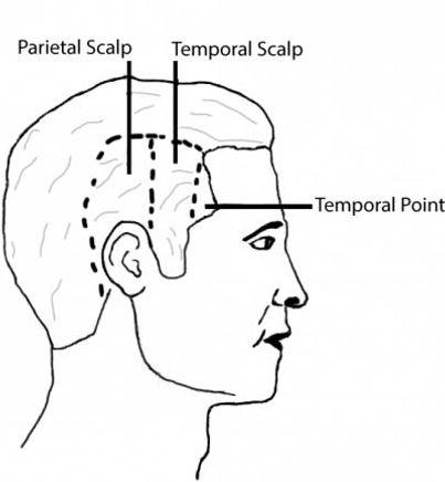 temple-transplantation.jpg