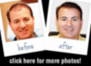 click-here-more-before-after-photos.png