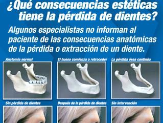¿Qué consecuencias tiene la pérdida de dientes?