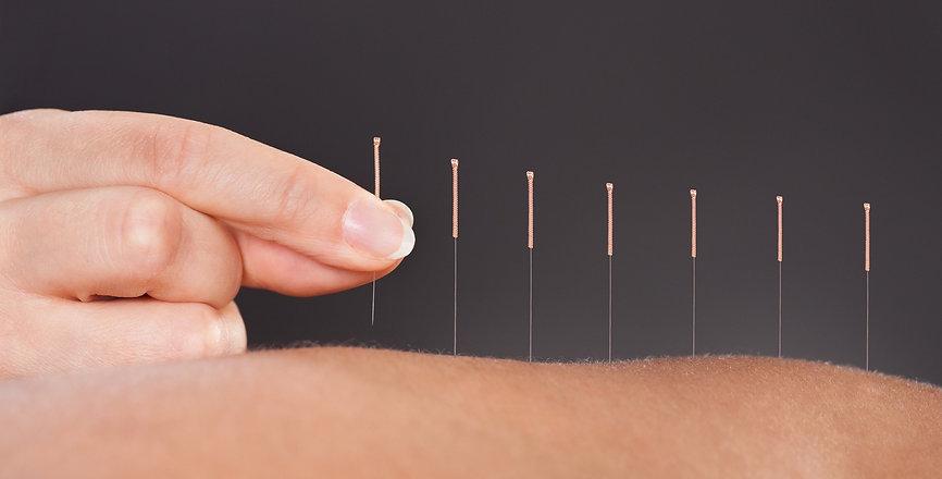 acupunture.jpg
