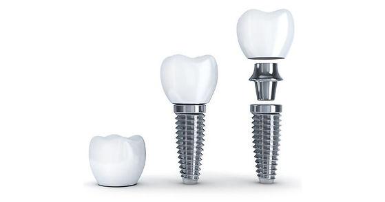 Simpsonville-dental-implants.jpg